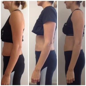 Diastasis client, week 1, week 3 & week 9