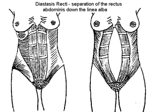 diastasis recti images